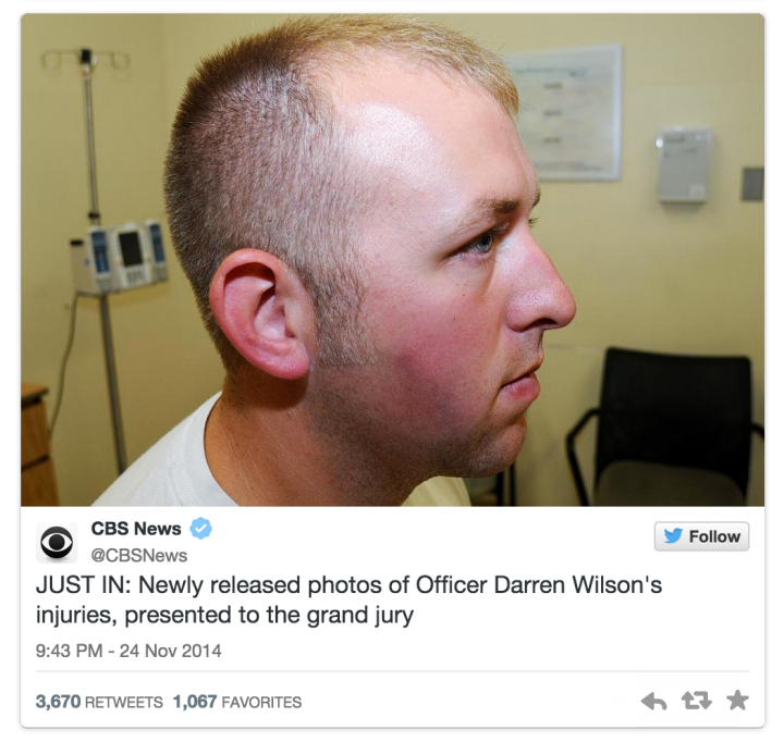 "The ""injuries"" Darren Wilson allegedly received when Michael Brown was trying to ""Kill Him""."